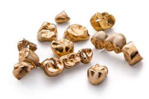 Goldzähne beinhalten viel Gold und weitere Edelmetalle