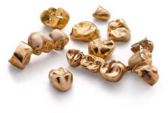 Zahngold mit Dentalresten und Zähnen