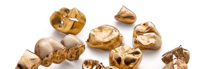 Zahngoldankauf auch von Kronen und Inlays