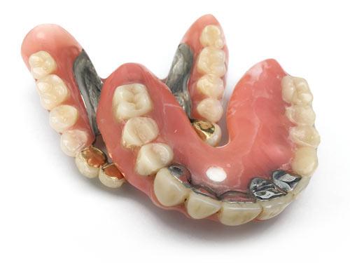 Zwei verschiedene Gebisse mit Zahngold